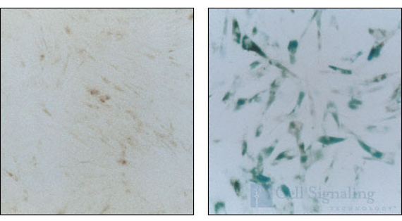 β Galactosidase Staining Kit