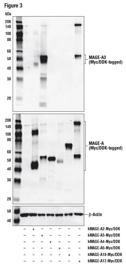 使用 MAGE-A3 (E9S4X)(上图)、Dykdddk Tag 抗体(中间)和 β-Actin (D6A8)(下图)对 293T 细胞提取物进行蛋白质印迹法分析。