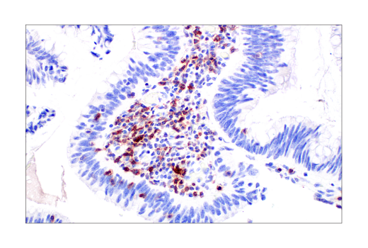 对人结肠腺癌细胞进行免疫组织化学实验表明 TIGIT 呈阳性。