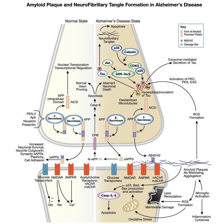 图 1 阿尔茨海默症相互作用通路中的淀粉样斑块